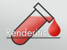 Renderitis logo